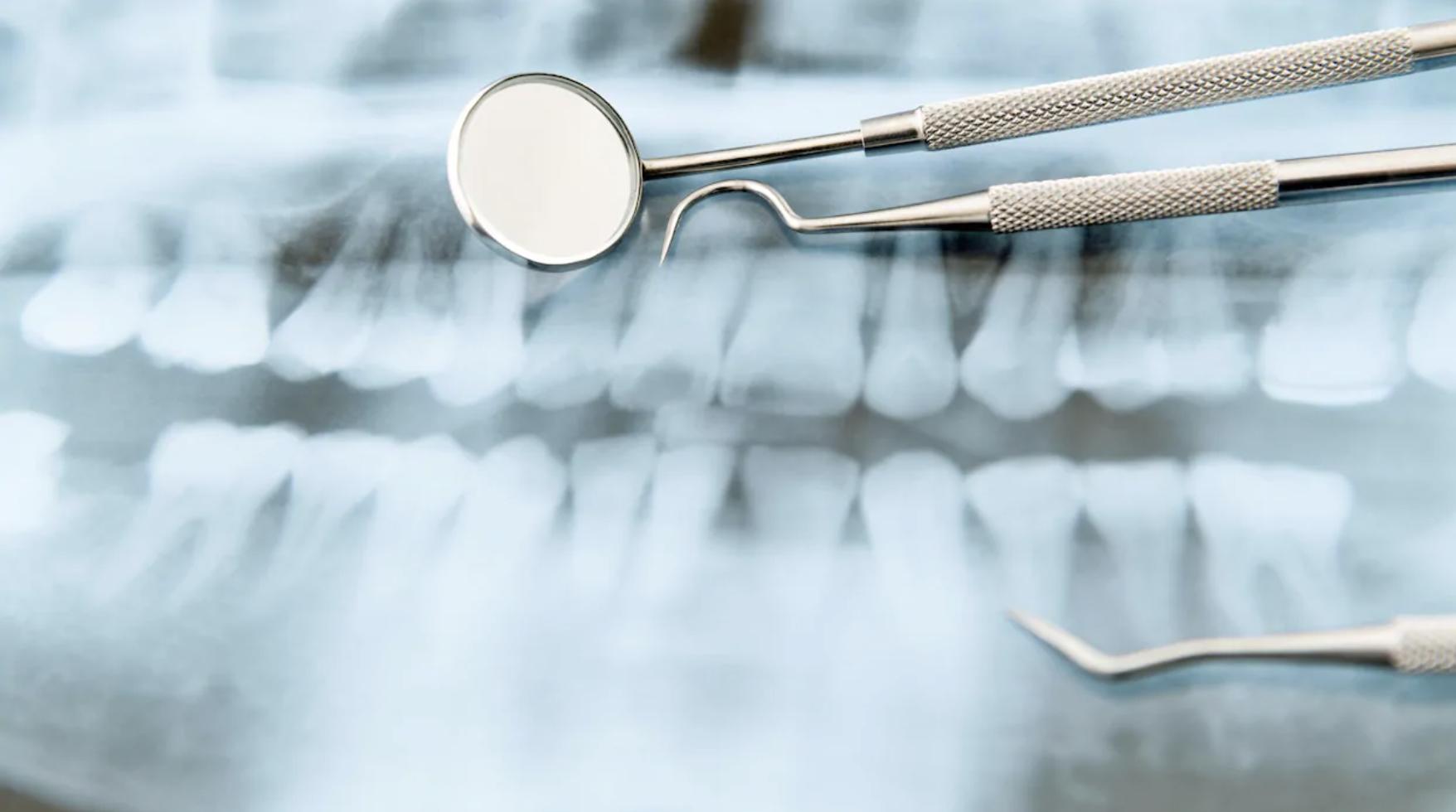 https://ici.radio-canada.ca/nouvelle/1401314/dentistes-traitements-prix-plans-quebec-facture-assurance